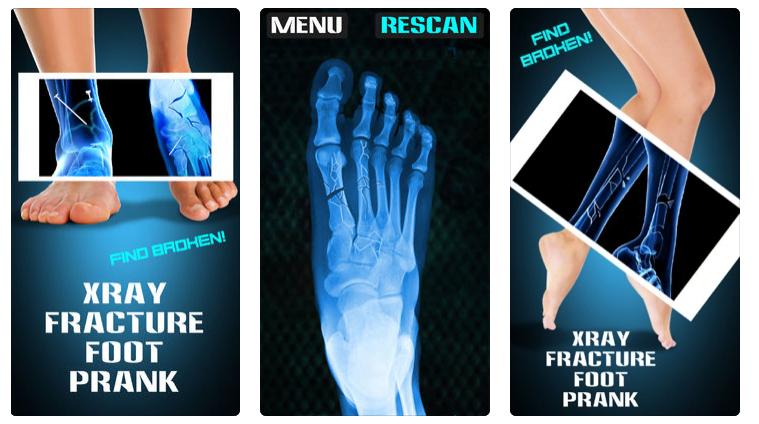 X-ray Prank Apps