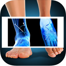 X-ray Fracture Foot Prank