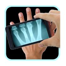 X-ray Prank Scanner